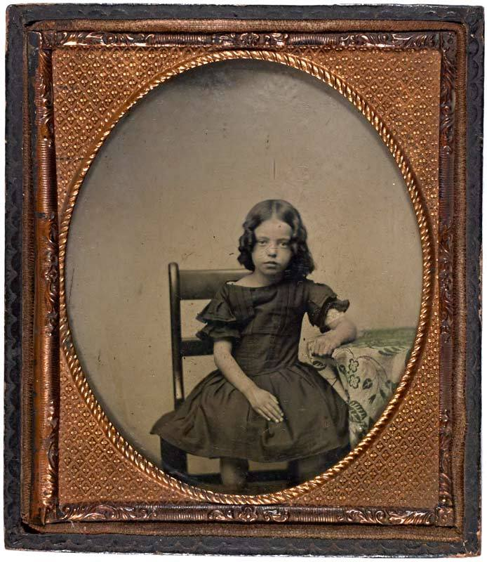 Ambrotype of a young girl